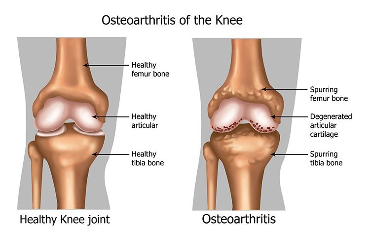 Osteoarthritis Pain Relief In Linwood , NJ - Linwood Acupuncture Clinic