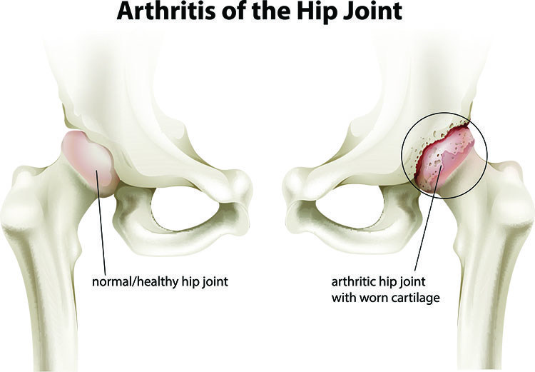 Arthritis Pain Relief In Linwood , NJ - Linwood Acupuncture Clinic