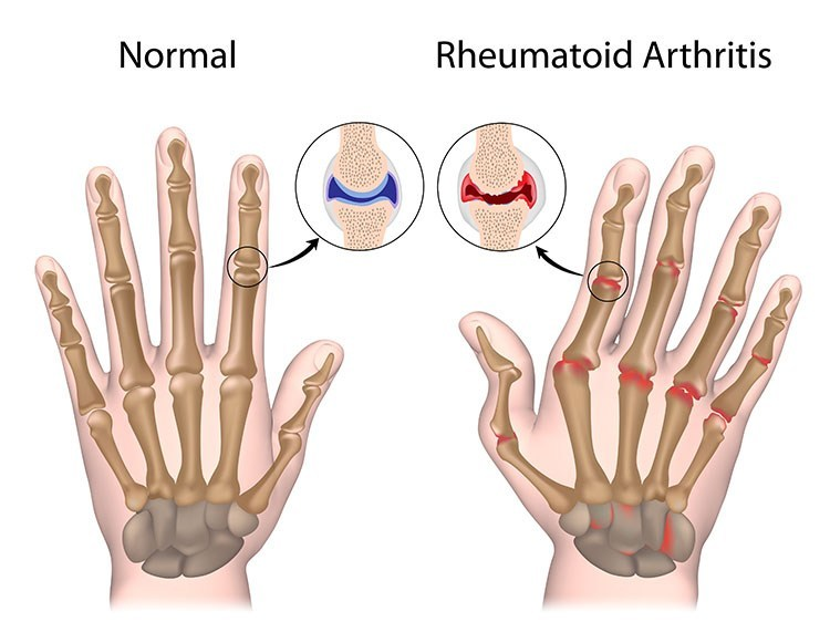 Rheumatoid Arthritis Pain Relief In Linwood , NJ - Linwood Acupuncture Clinic